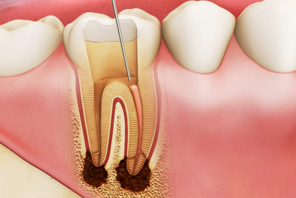 Root Canal Fillings